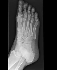 Stress fracture of foot (image 3 of 4)