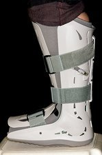 Stress fracture of foot