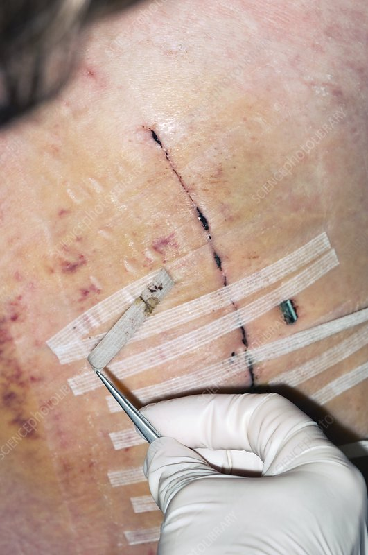 Removing steri-strips