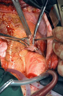 Aortic valve replacement surgery