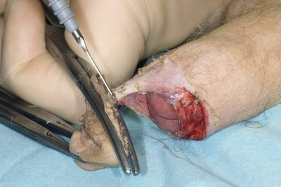 Penis circumcision to treat phimosis