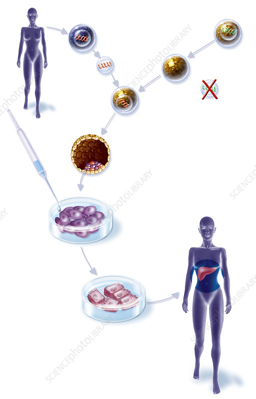 Cell therapy, illustration