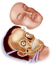 Facial graft, drawing