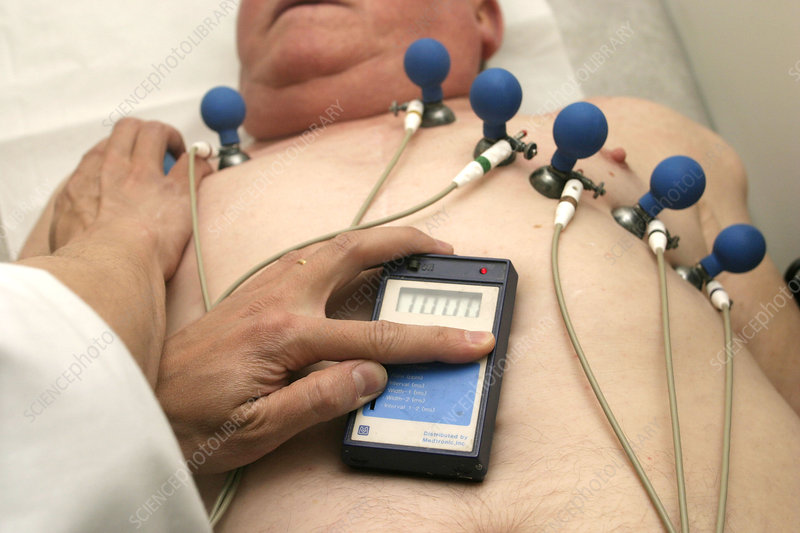 Monitoring a pacemaker