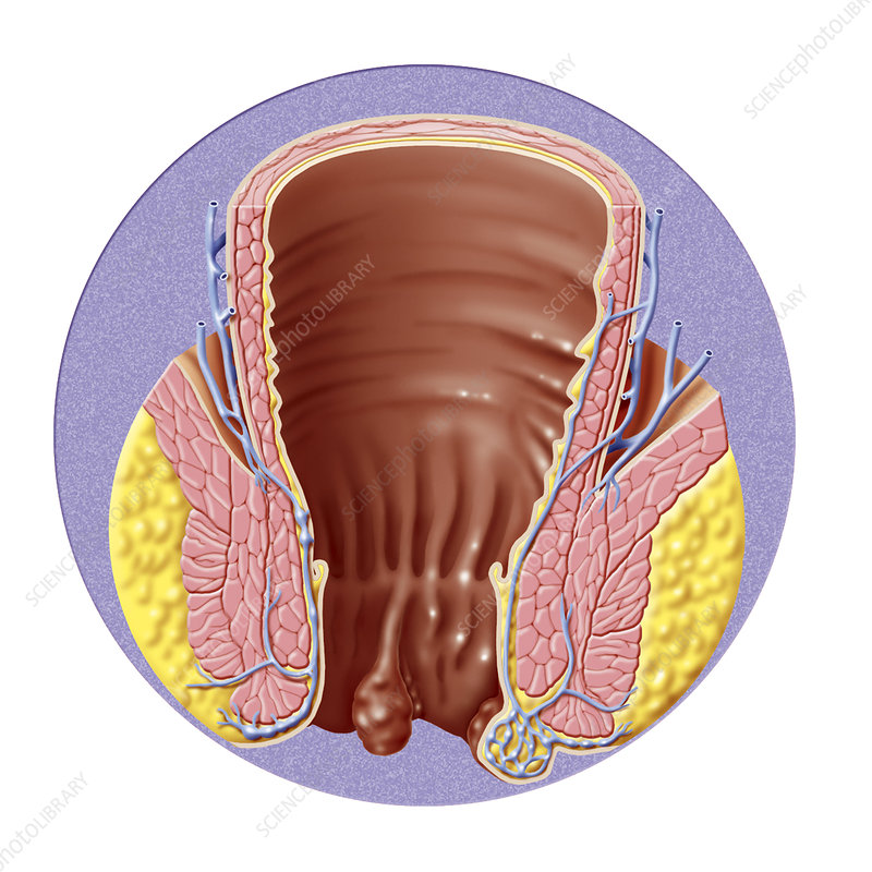 Hemorrhoid, illustration