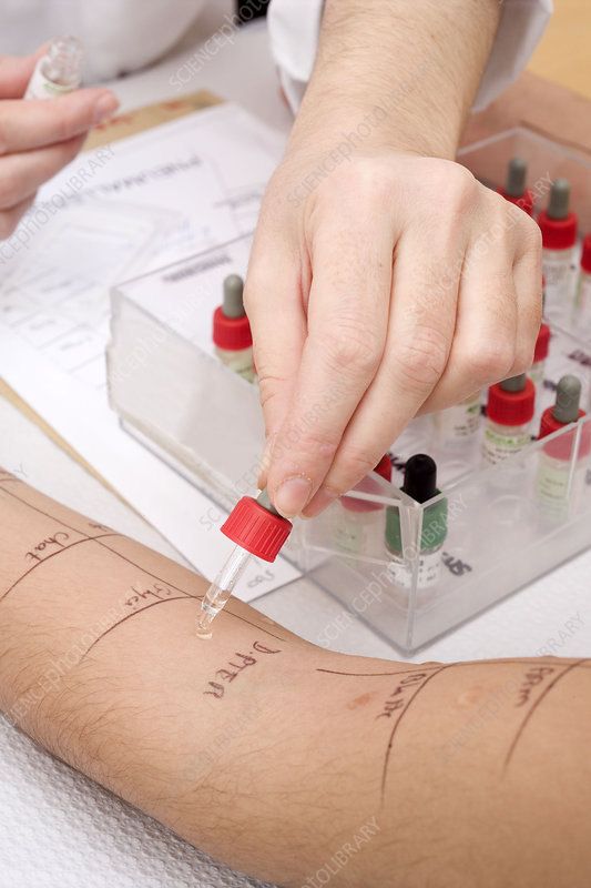 Allergy test, woman