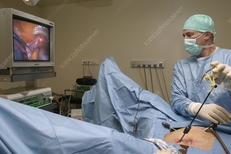 Gynecological surgery, endoscopy