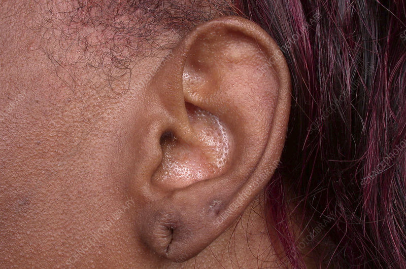 Wounded ear