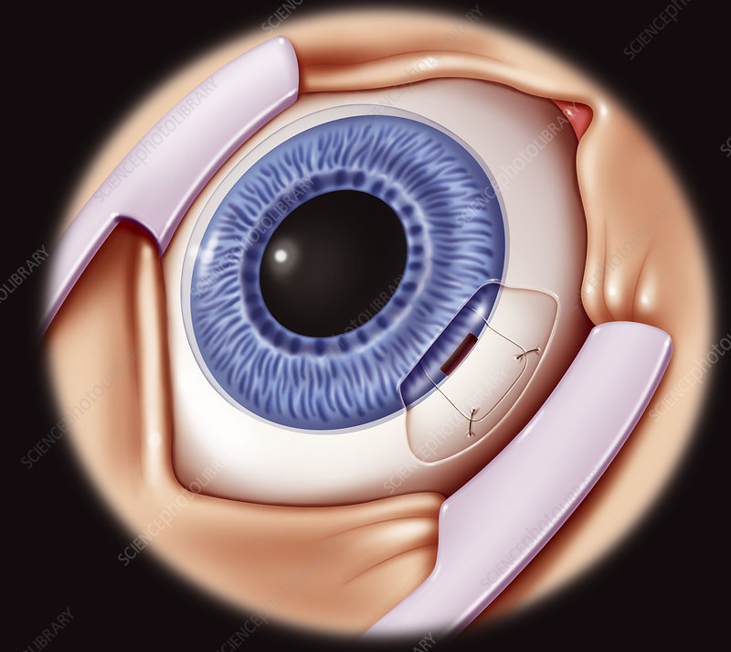 Glaucoma surgery drawing