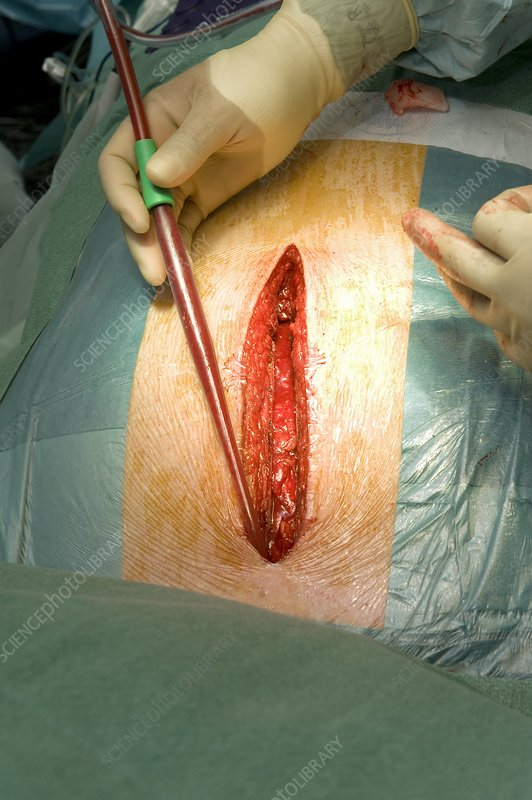 Surgical drain following heart surgery