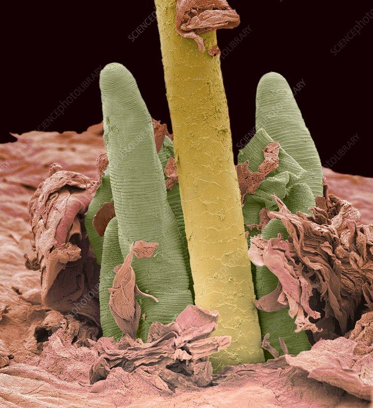 Eyelash mite tails, SEM