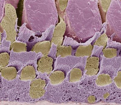 Gecko retina, SEM