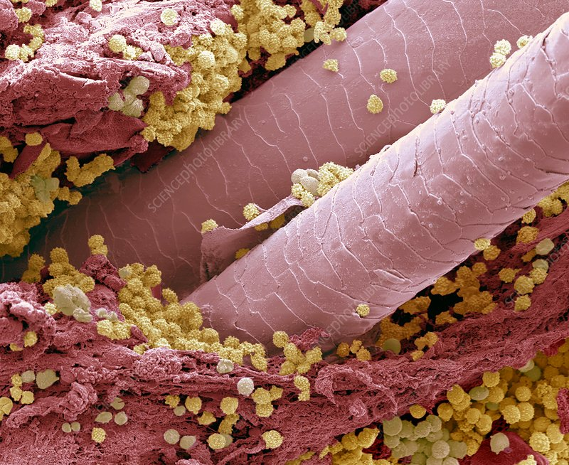Lymphocytes in hair follicle, SEM