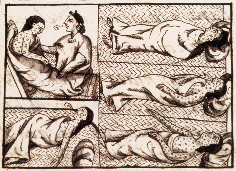 a history of small pox in south america Smallpox was a devastating scourge it was a highly contagious viral disease that killed up to half of those infected and seriously maimed survivors, through severe scarring of the skin with deep pock marks, blindness and infertility.