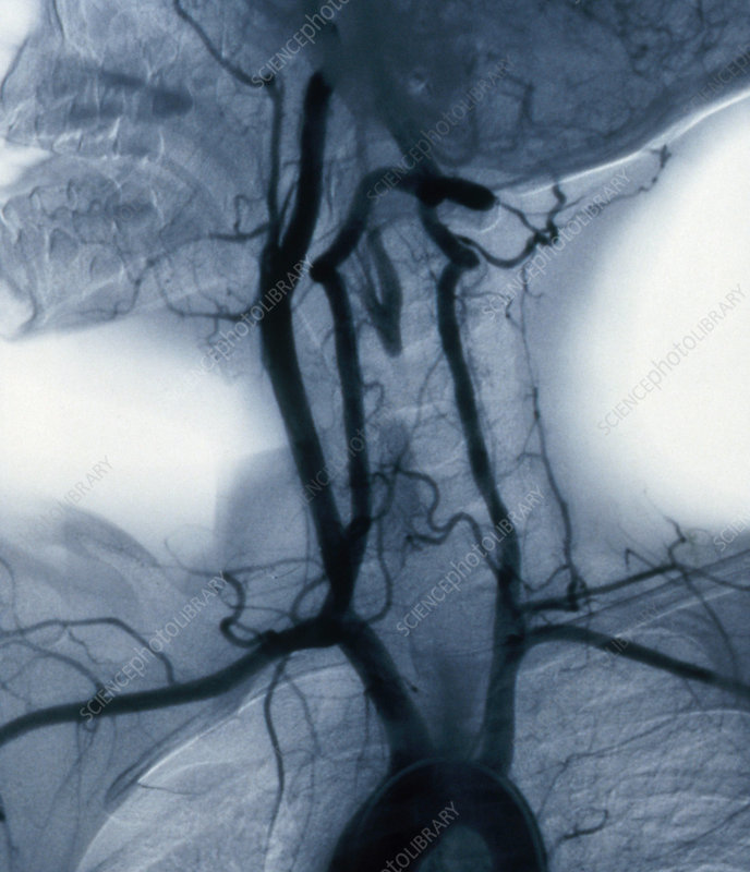 Angiogram of Carotid Arteries