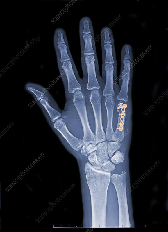 Hand Fracture & Fixation