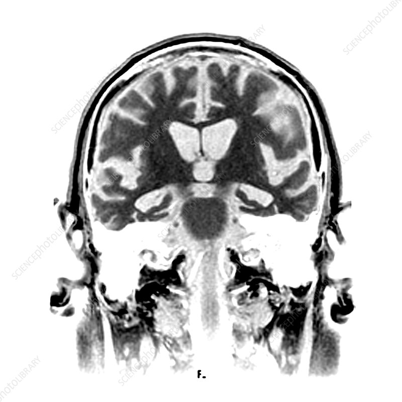 MRI of Alzheimers Disease 2