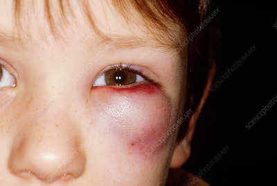 Boy With Black Eye