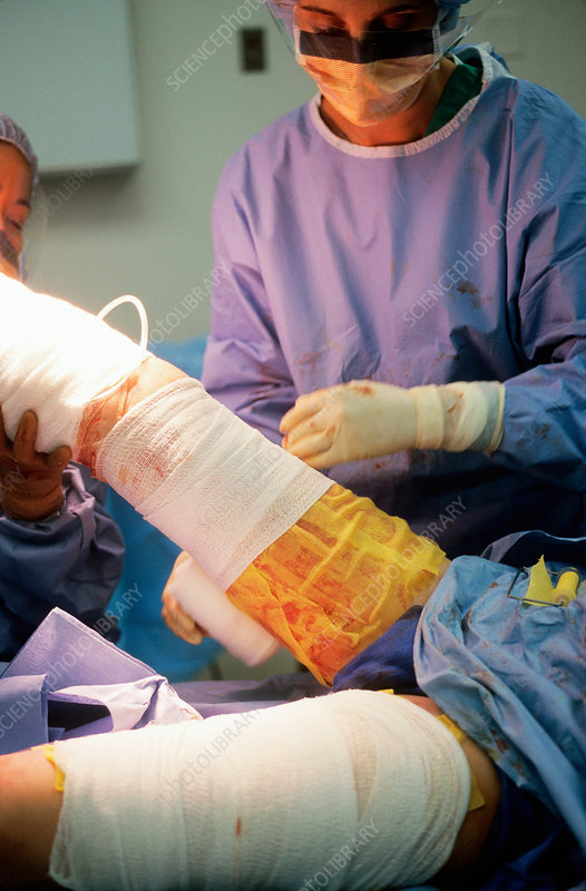 Wrapping Leg of Burn Patient