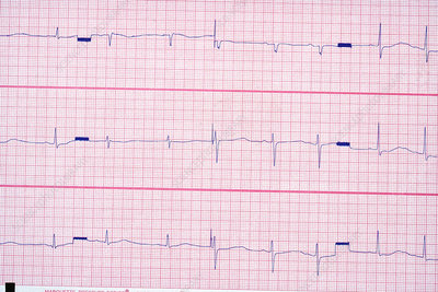 Long QT Syndrome EKG