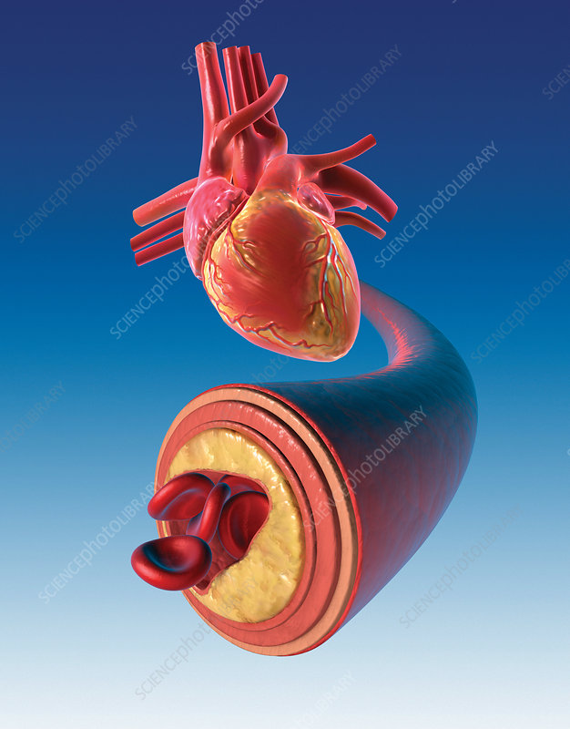 Caption: Cross-section of a coronary artery showing plaque build-up and