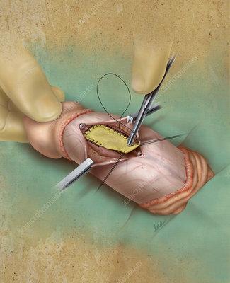 Peyronie's Syndrome Surgery