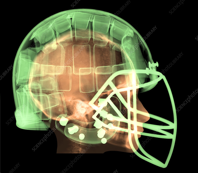 Football Helmet, X-Ray