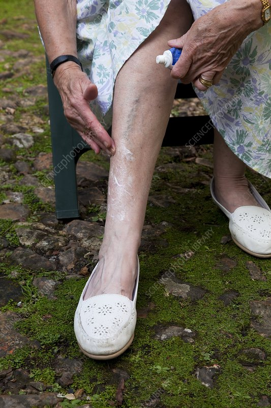 Elderly woman putting cream on her leg