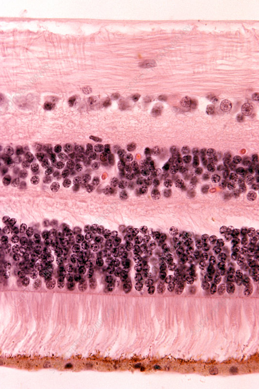Retina section showing rods and cones