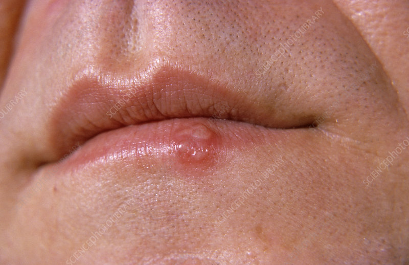 Cold sore on a human lip