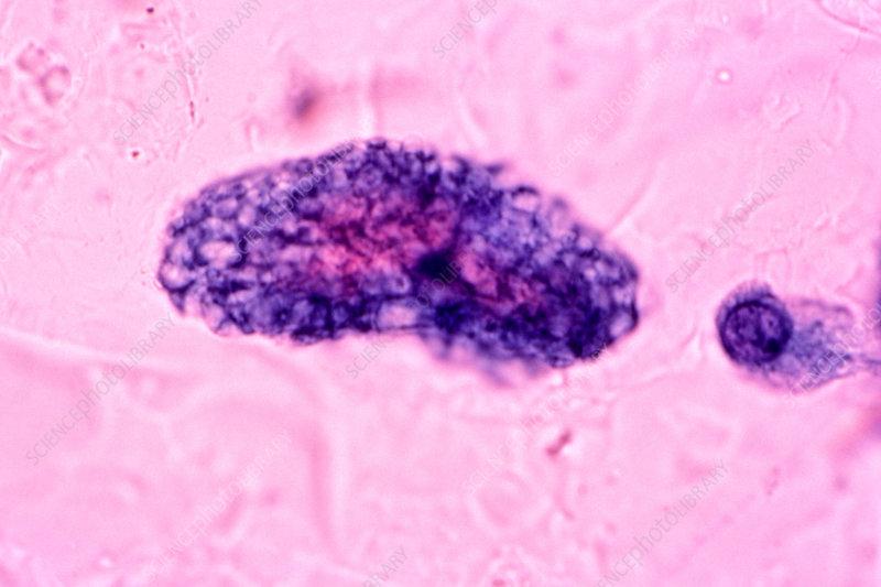 Pneumocystis carinii Fungus in sputum - Stock Image - C005