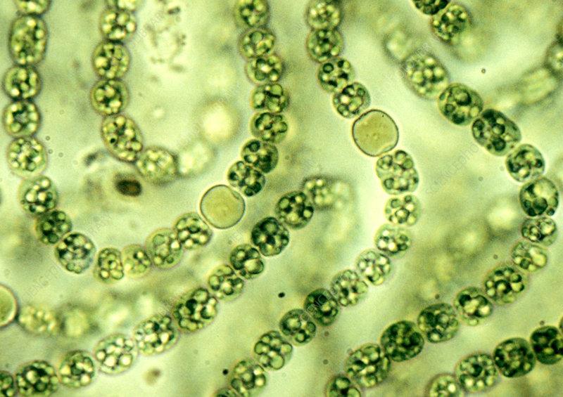 Nostoc Cyanobacteria with heterocysts