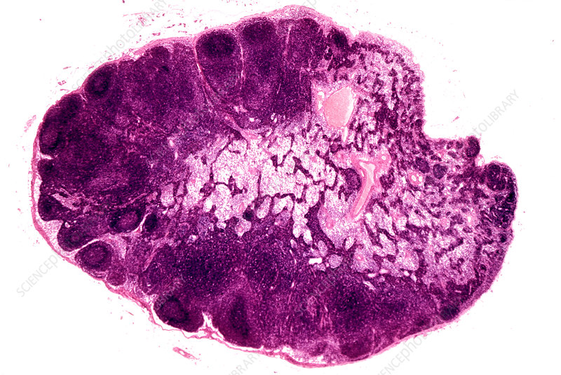 Cross-section of an entire lymph node