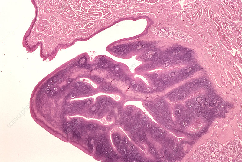 Palatine tonsil cross-section LM X3