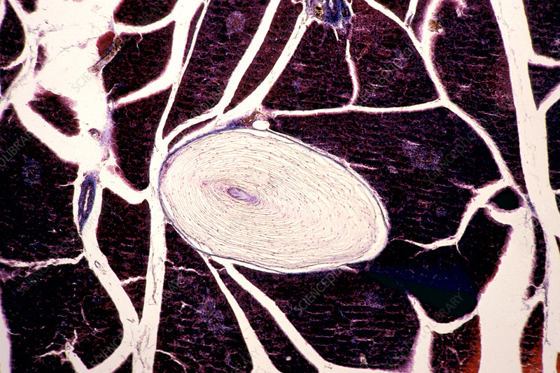 Pacinian corpuscle in the pancreas LM X16
