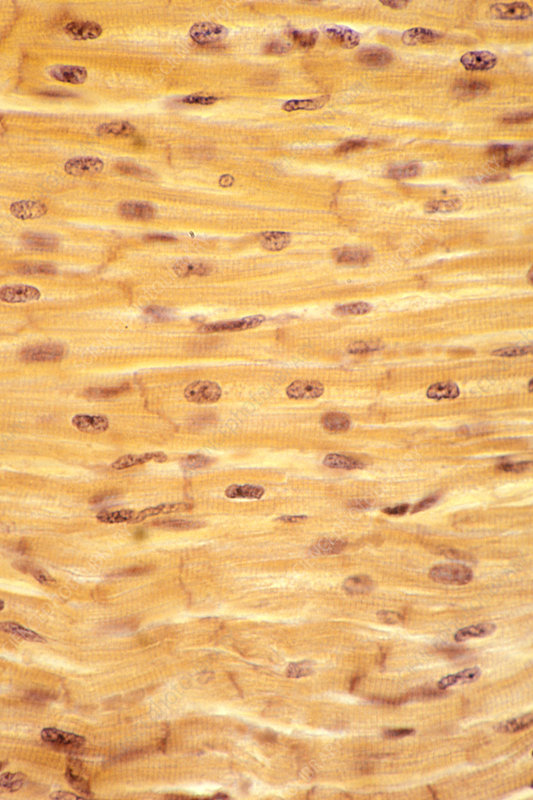 Cardiac muscle with intercalated discs