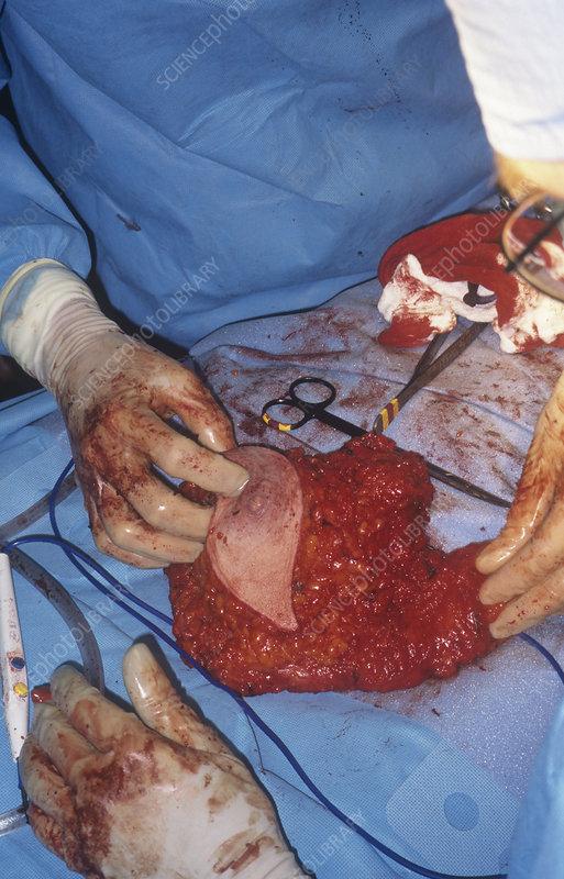 Modified radical mastectomy operation