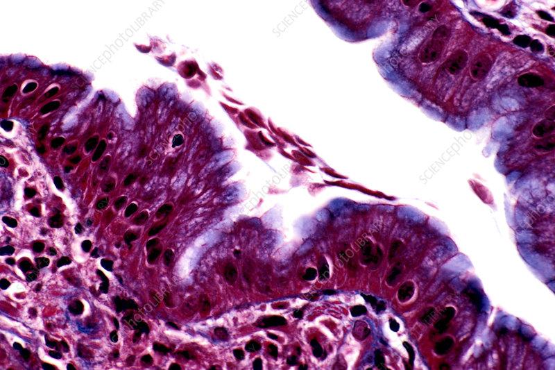 Giardia lamblia Protozoa in the duodenum