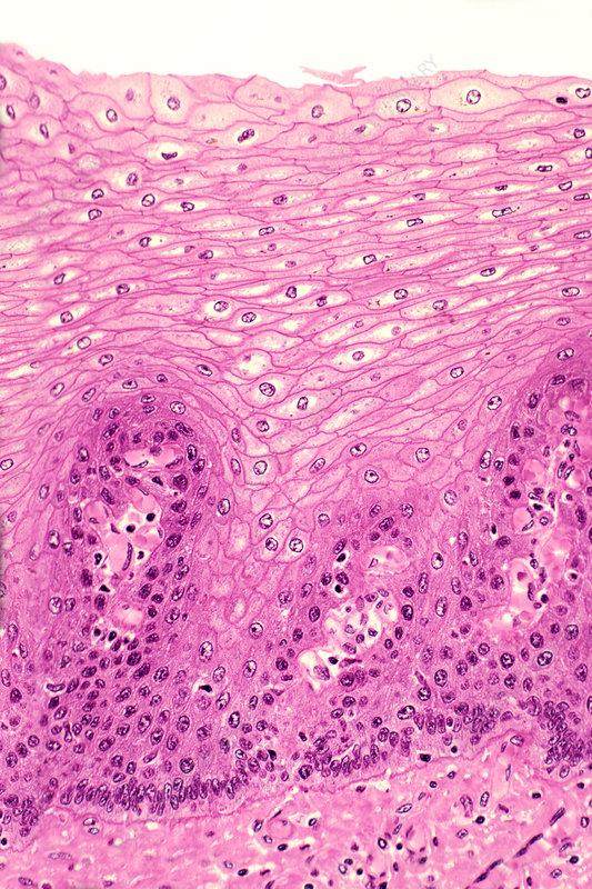 Stratified squamous epithelium, esophagus
