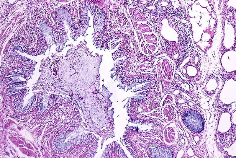 Bronchial asthma in a lung section