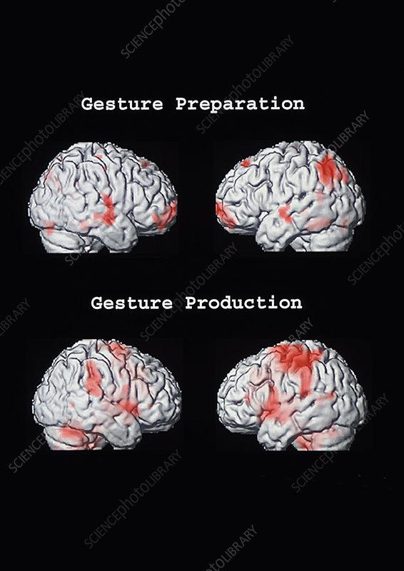 Functional MRI (FMRI) brain activity