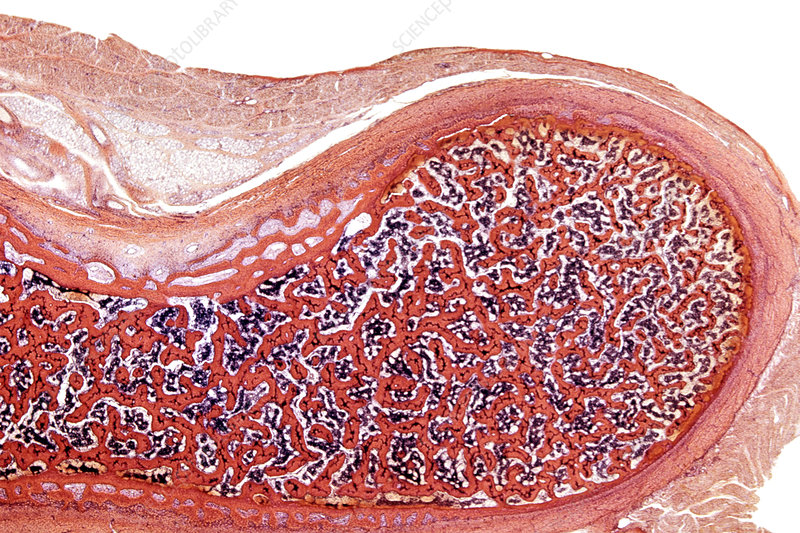 Fetal femur section metaphysis. LM