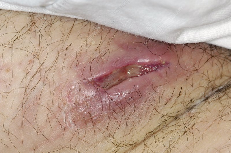 Perineal abscess