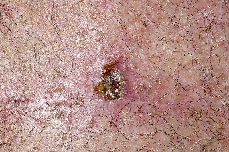 Infected wound after cancer removal