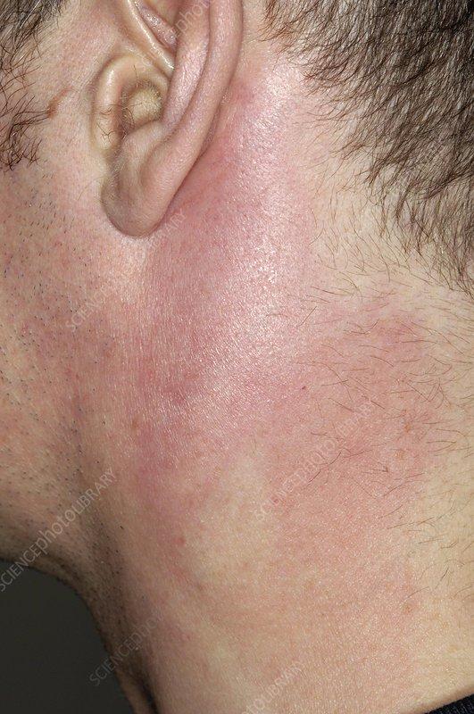 Swollen lymph nodes in
