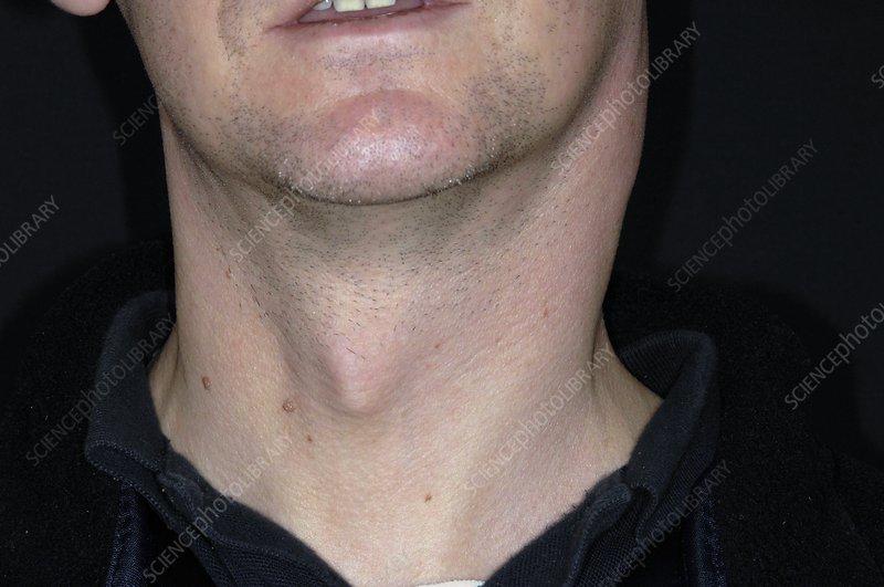 Swollen Lymph Nodes Neck