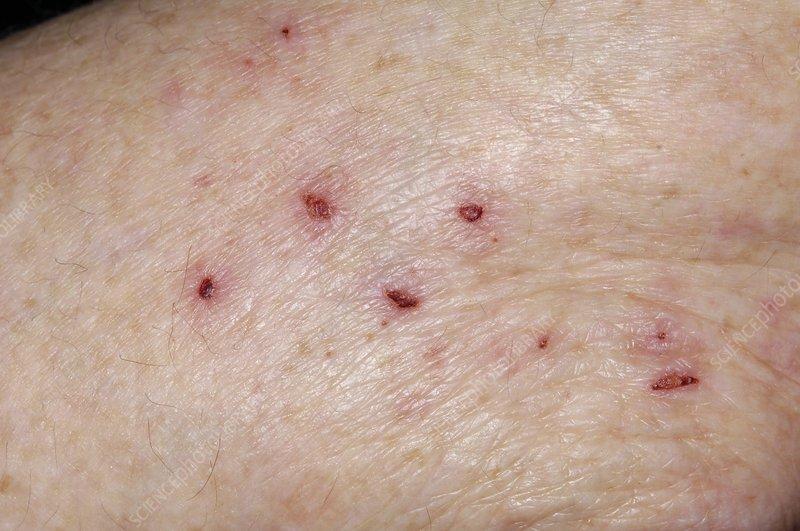 Scratch marks on arm in eczema