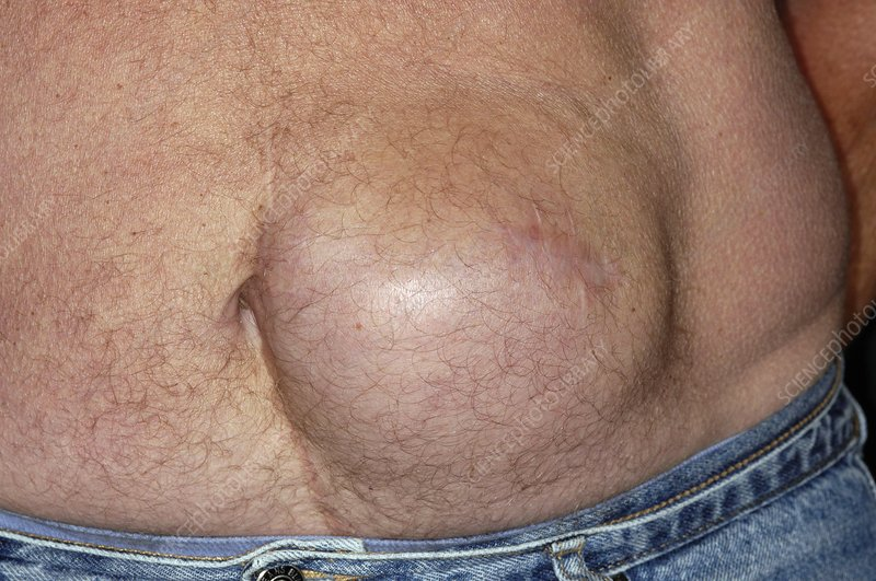 Incisional hernia of the abdomen