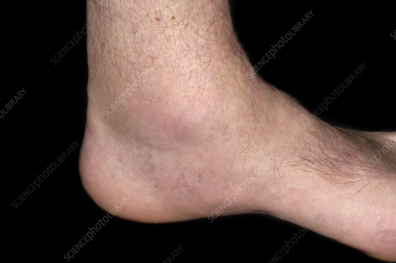 Gout of the ankle