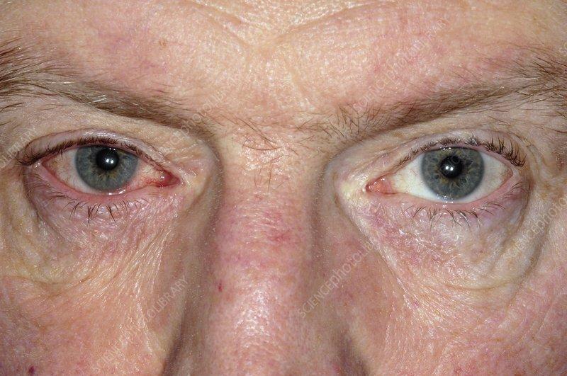 Blepharitis of the eye